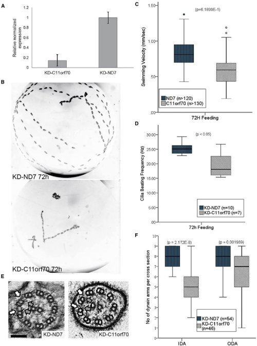 small resolution of paramecium gene knockdown shows a conserved function for c11orf70 in dynein arm assembly a