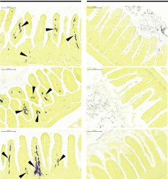 photomicrographs of enteric tissue sections from experimental animals stained for bacteria small intestines recovered from anthrax gavaged mice  [ 850 x 1013 Pixel ]