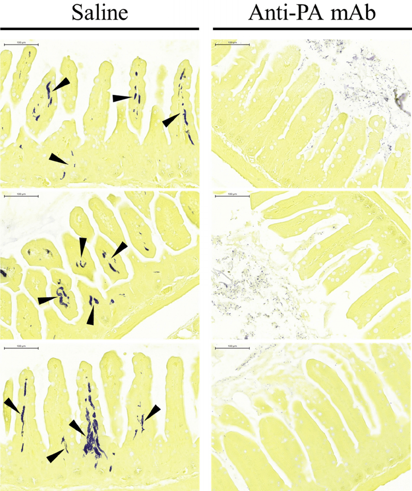 hight resolution of photomicrographs of enteric tissue sections from experimental animals stained for bacteria small intestines recovered from anthrax gavaged mice