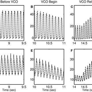 Modified myofiber stress-strain relationship for the RW