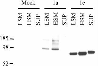 The GABA B(1e) receptor subunit is both membrane