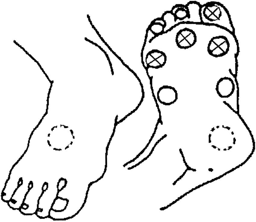 Ten touch points (9 plantar and 1 dorsal), and the model 1
