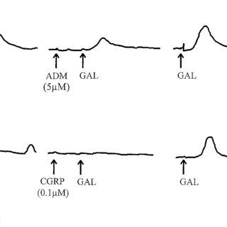 Representative Northern blot analysis of ADM mRNA. Lanes