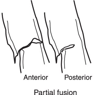 A harpacticoid in lateral view showing how it was divided
