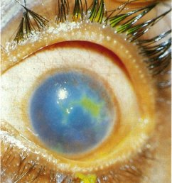 geographic type corneal ulceration with vascularisation and stromal oedema  [ 799 x 1369 Pixel ]