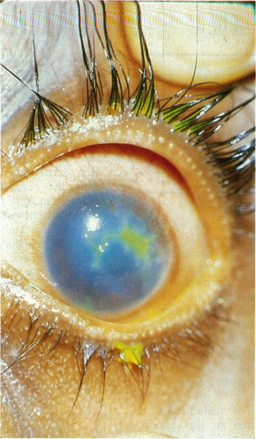 small resolution of geographic type corneal ulceration with vascularisation and stromal oedema