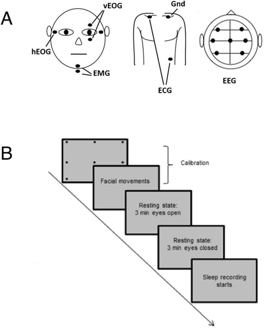 (A) montage of vertical and horizontal EOG, EMG, ECG, and