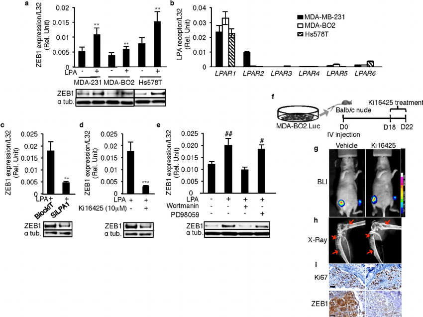 LPA 1 mediates LPA-induced expression of ZEB1 in vitro and
