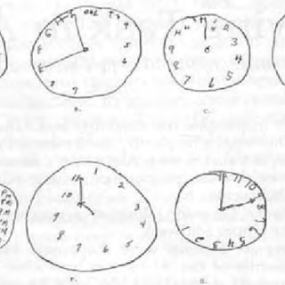 Examples of Clock Drawing Test Performance Identify