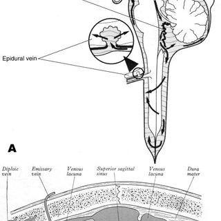 (PDF) In Vitro Model of Cerebrospinal Fluid Outflow
