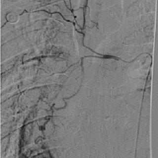 (PDF) Bronchial Artery Embolization for Hemoptysis