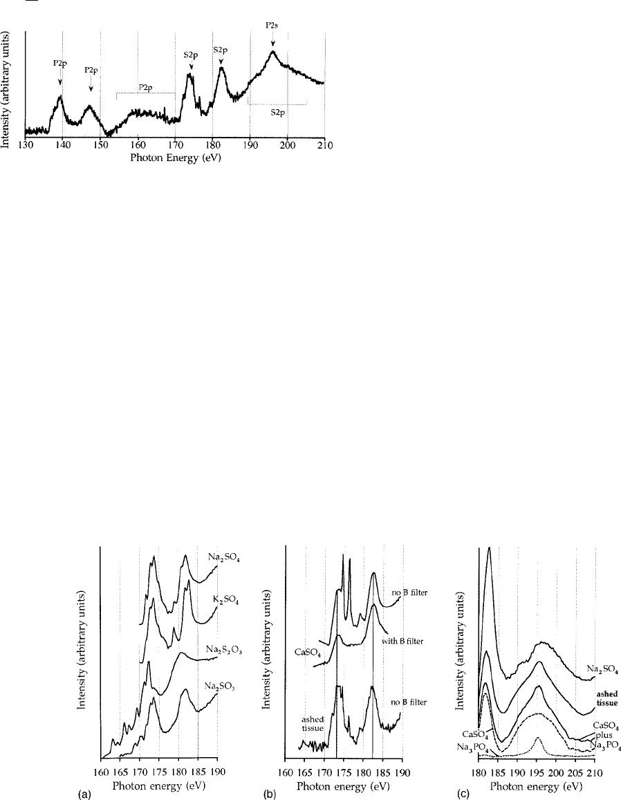 Spectromicroscopy of boron in human glioblastomas