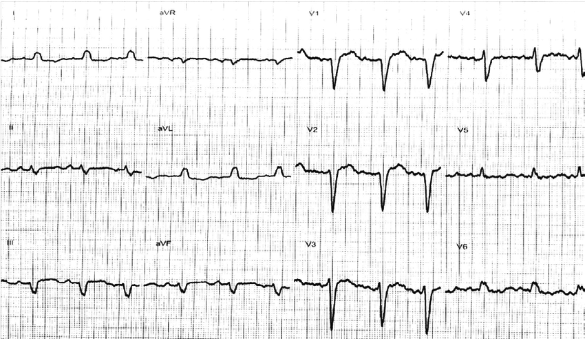 Initial (prior to amiodarone administration) 12 lead ECG