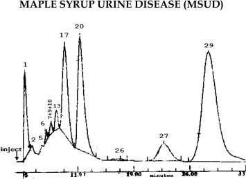 Urinary organic acids from a patient with maple syrup