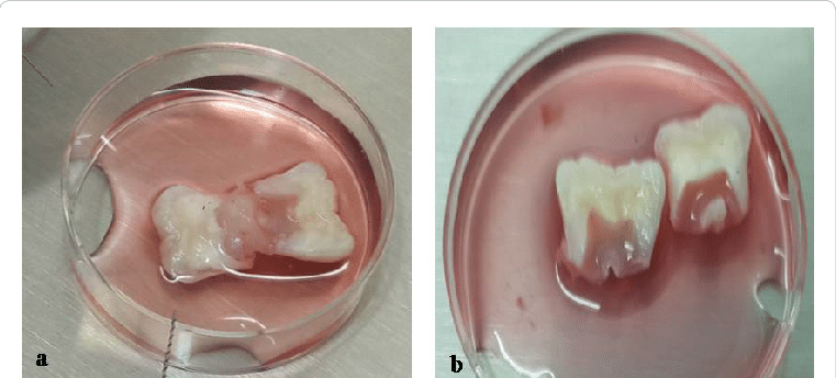 human tooth diagram rj11 wiring australia (a) dental pulp of 13 year subject's after vertical split of... | download scientific