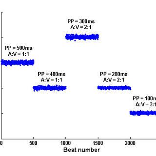 Illustration of the action potential of the AV nodal cells