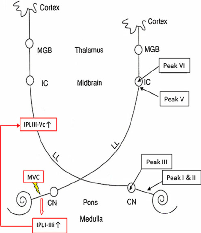 hight resolution of brainstem compensation mechanism involved in neurovascular conflict of the eighth nerve