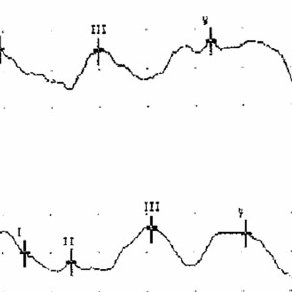 (PDF) Vascular compression of the cochlear nerve and
