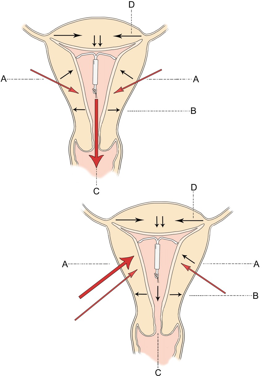 medium resolution of direction of uterine forces in the normal intrauterine device download scientific diagram