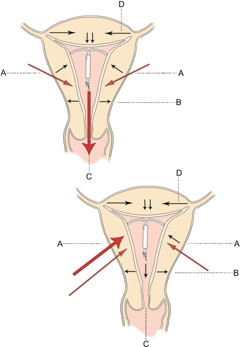 small resolution of direction of uterine forces in the normal intrauterine device download scientific diagram