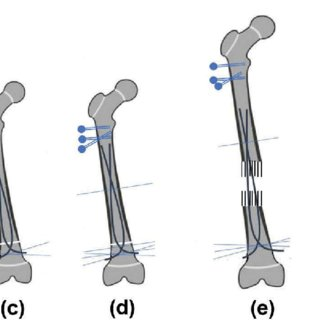 (PDF) The use of flexible intramedullary nails in limb