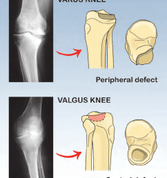 usually varus knee appears with bone defect in posteromedial site of tibial plateau instead  [ 850 x 1045 Pixel ]