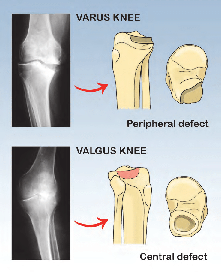 hight resolution of usually varus knee appears with bone defect in posteromedial site of tibial plateau instead