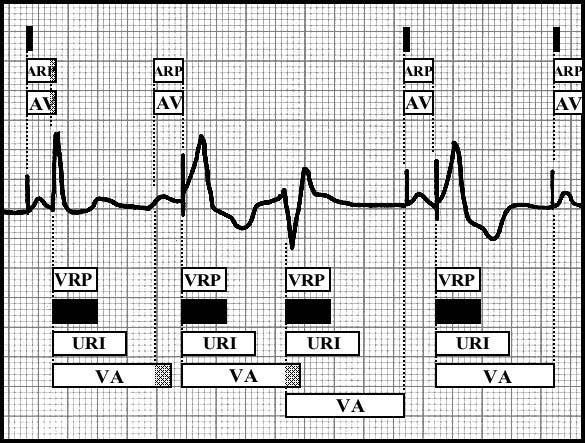 Basic block diagram of ECG rhythm strip in DDD Operating