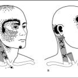 Referred pain pattern of trigger points in the