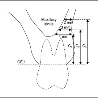 Definition of horizontal bone thickness (B) from sinus