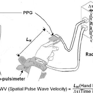 Radial artery pulse graph and PPG signals obtained from