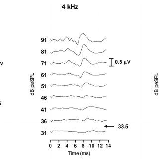 Effects of stimulus frequency and level on ABR waveforms