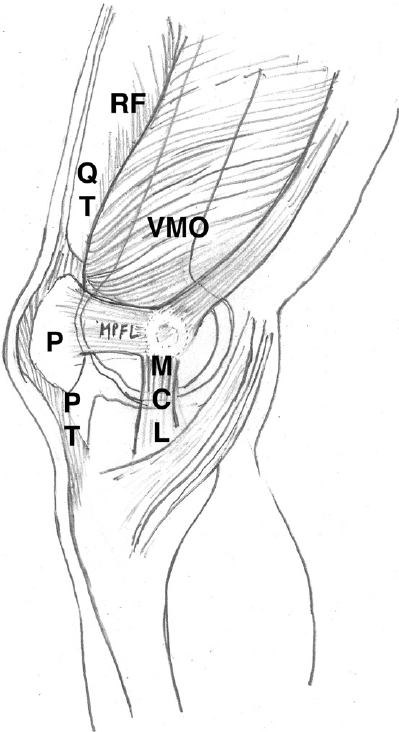 e Anatomy of normal medial patellofemoral ligament
