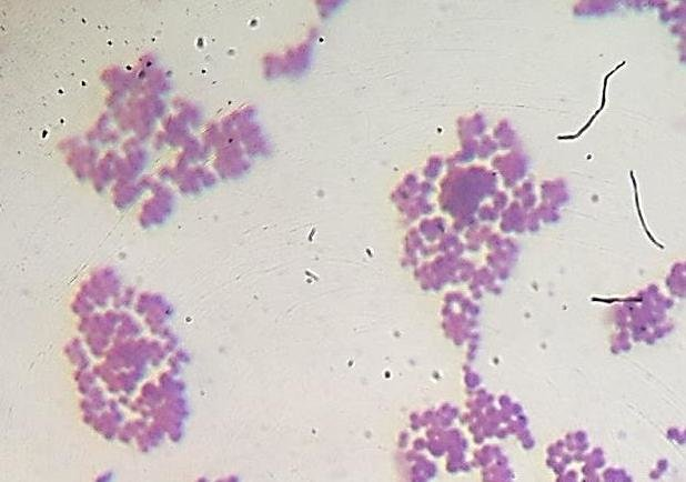 Microphotograph of Gram positive Staphylococcus aureus in ...