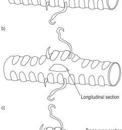 positions of the hooks on the tracheal wall showing distension of the trachea when the [ 695 x 1311 Pixel ]