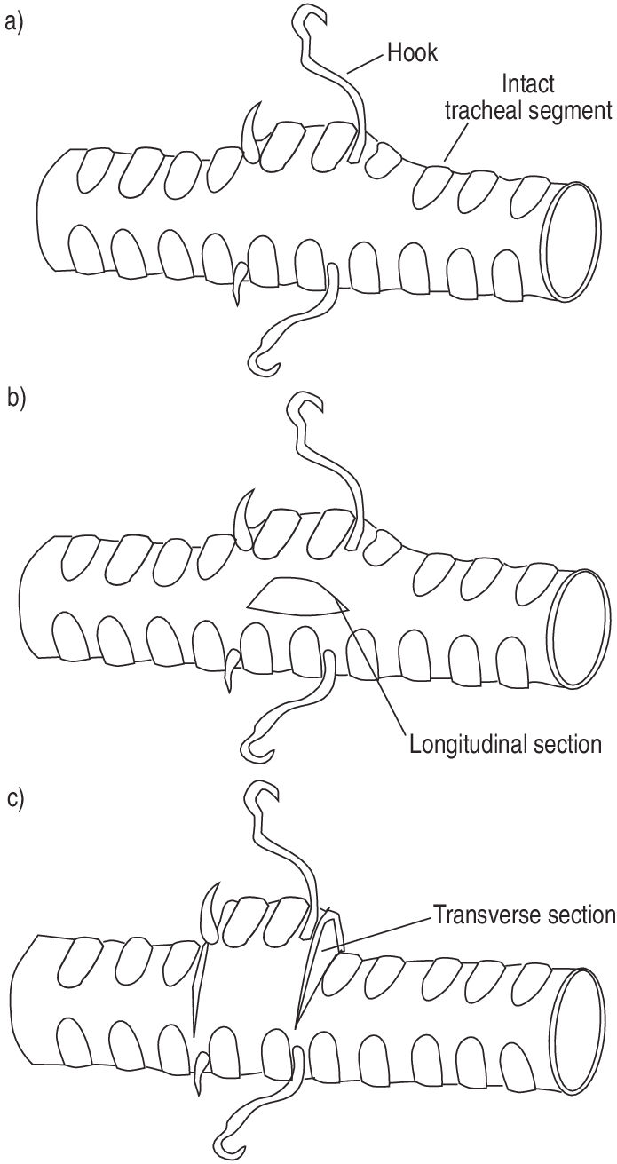 hight resolution of  positions of the hooks on the tracheal wall showing distension of the trachea when the