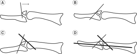 Illustrations for surgical procedures. (A) Under C-arm