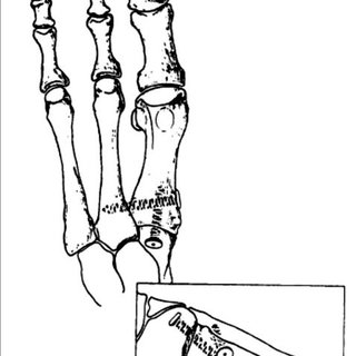 Different types of proximal metatarsal osteotomy: (a