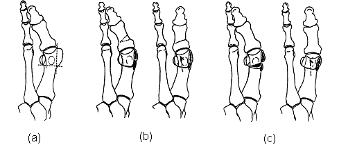The Distal Chevron Osteotomy and Variation: (a) Surgical