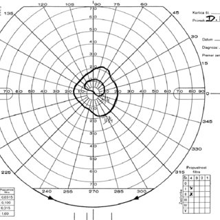 Visual field (Goldmann perimetry) of the left eye after 8