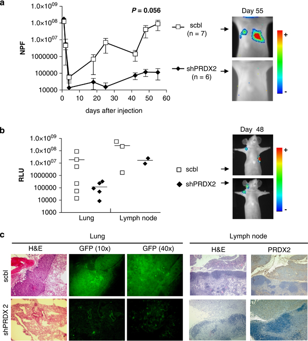 Peroxiredoxin 2 specifically regulates the oxidative and metabolic stress response of human metastatic breast cancer cells in lungs (PDF Download ...