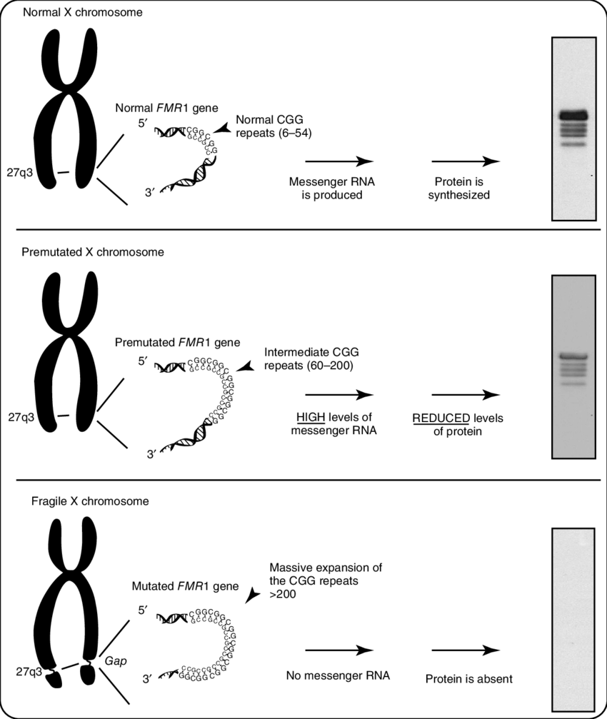 medium resolution of molecular bases of the fragile x syndrome a normal a premutated and a mutated