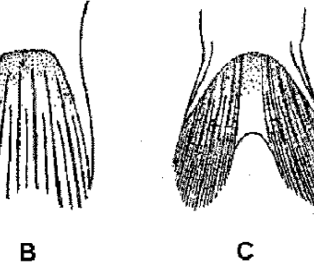 Pelvic Fin Shapes Of Trypauchen Group Members With An Opercular Pouch From Hora 1924 A Trypauchen Vagina And Trypauchen Pelaeos N Sp