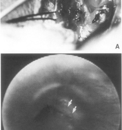 a intraoperative photograph of the esophageal perforation download scientific diagram [ 850 x 1498 Pixel ]