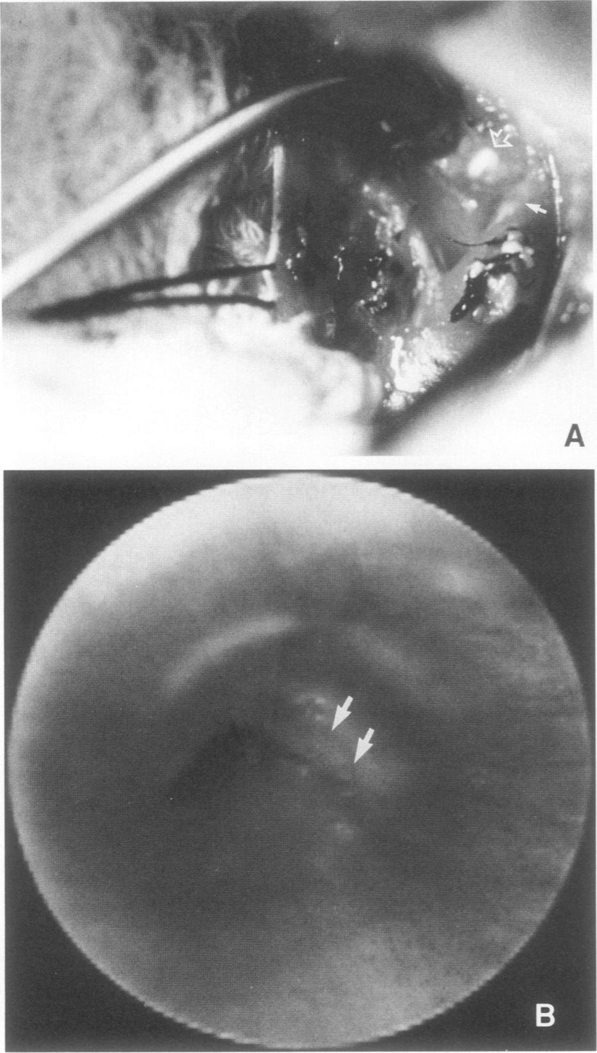 hight resolution of a intraoperative photograph of the esophageal perforation download scientific diagram