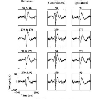 (PDF) Local field potentials related to bimanual movements