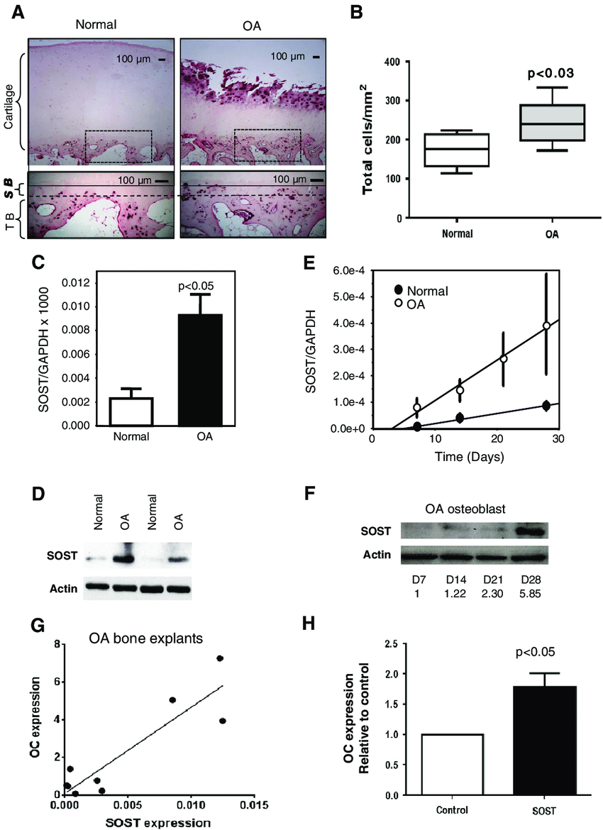 hight resolution of expression and production of sclerostin in normal and oa bone tissue and osteoblasts a
