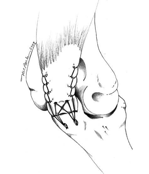 Triceps tendon repair using an anatomic repair technique