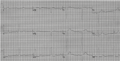 EKG showing complete heart block with ventricular escape