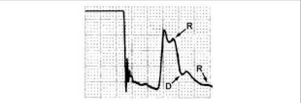 Example of a waveform common in patients with hypertension